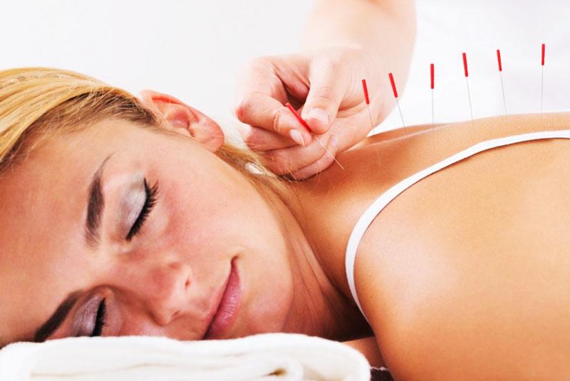 acupuncture contre le mal de dos